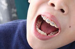 少年牙齒矯正 的圖像結果
