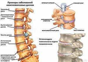 Почки сосны лечение остеохондроза