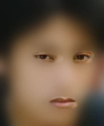 眼睛变形且无神,该怎么恢复?
