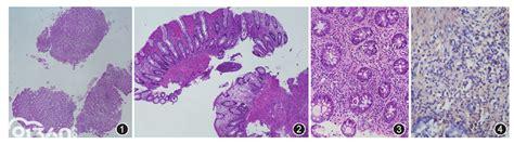 慢性活动性EB病毒感染性肠炎一例 - 91360智慧病理网